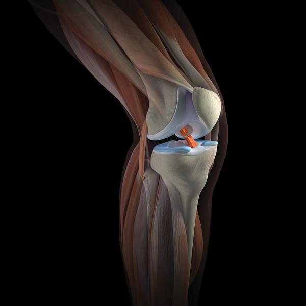 Эффективная добавка для суставов: что принимать спортсменам